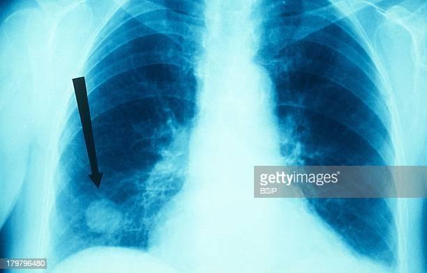 Tuberculoma XRay of Lungs