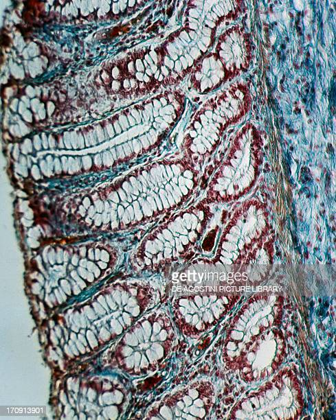 Tubular and unbranched glands from the colon viewed under a microscope at x150 magnification
