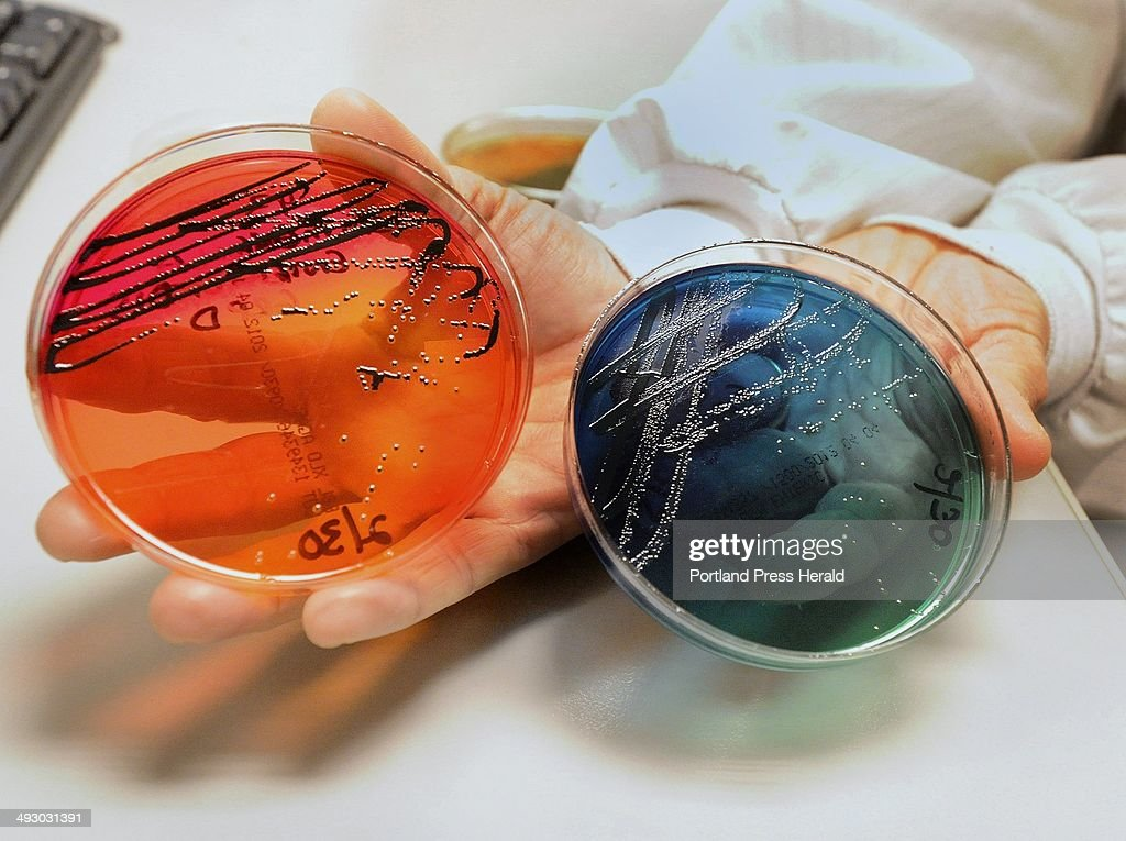 NorDx labs in Scarborough offers a wide variety of testing services including microbiological testin : News Photo