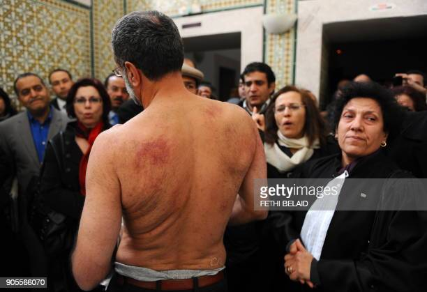 Tunisian lawyer Abderrahman Ayedi takes off his shirt during a meeting in Tunis on December 29 2010 to show to human rights activist and lawyer...