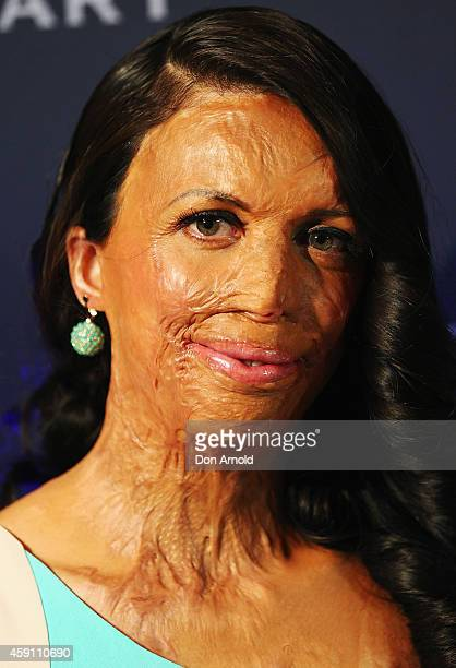 Turia Pitt arrives at the world premiere of Unbroken at State Theatre on November 17 2014 in Sydney Australia