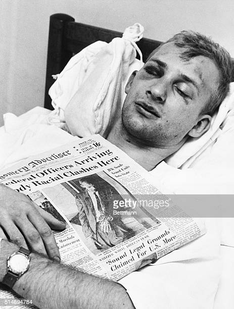Twentyone year old ministerial student and member of the Freedom Riders Jim Zwerg lies in a hospital bed after being beaten by prosegregationists at...