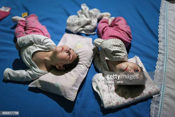 Twins Eloisa and Eloa both 8 months old and both born with microcephaly lie in bed on Christmas eve at the home of the twin's grandparents on...