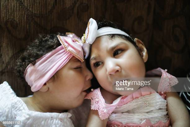 Twins Heloisa and Heloa Barbosa both born with microcephaly sit at their oneyear birthday party on April 16 2017 in Areia Paraiba state Brazil The...