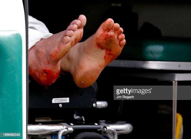 Two blood stained feet of a man hangs outside an ambulance outside a medical tent located near the finish of the 117th Boston Marathon after two...
