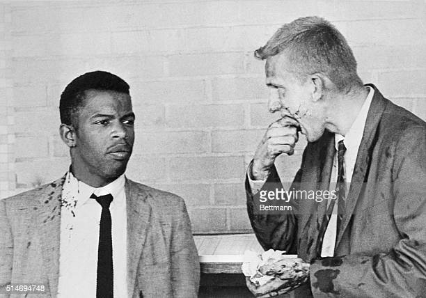 Two bloodsplattered Freedom Riders John Lewis and James Zwerg stand together after being attacked and beaten by prosegregationists in Montgomery...
