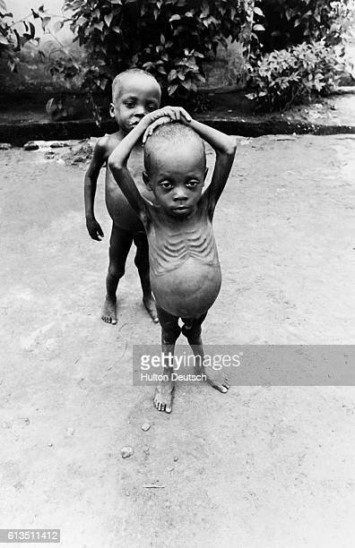 Two children face starvation during the Nigerian Civil War In May 1968 Biafra in eastern Nigeria seceded from the central government resulting in...