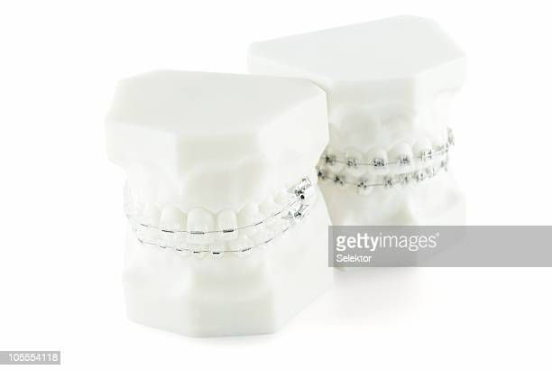 Two dental mold with braces