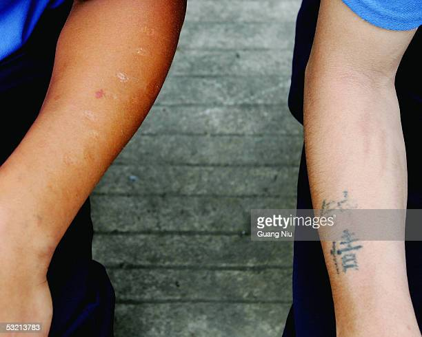 Two drug rehab patients' arms show drug injection marks and a tattoo with Chinese characters ' Deep Love' in a compound at the Kunming Municipal...