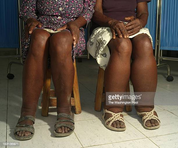 Two female patients of Dr Luccene Desir director of the Center of Research for Filariasis in Haiti display their legs affected by elephantiasis at a...