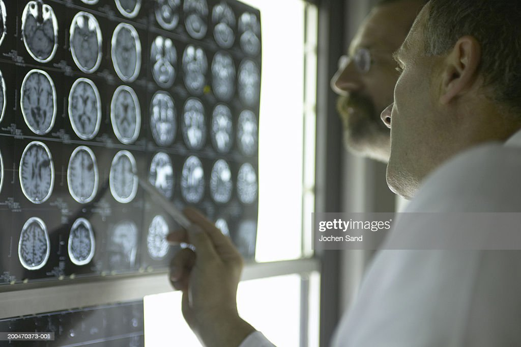 """Two male doctors looking at X-Rays and MRI scans, pointing at scan"" : Stock Photo"