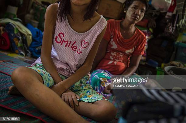 Two Myanmar housewives who have the HIV virus after they were infected by their husbands who had contacts with sex workers are housed at the National...