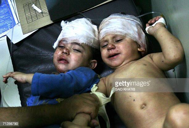 Two Palestinian toddlers with their heads bandaged lie on a trolley at the Naser hospital in the southern Gaza Strip town of Khan Yunis 21 June 2006...