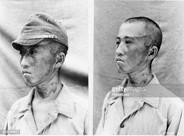 Two side-by-side photos of a man with atomic bomb flash burns on his face, Nagasaki, Japan, October 2, 1945. The man's burns, outlined by his cap,...