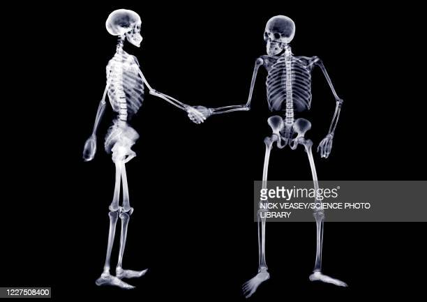 two skeletons shaking hands, x-ray - human arm fotografías e imágenes de stock