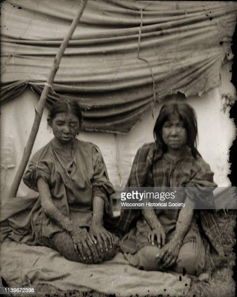 Two unidentified young HoChunk girls with smallpox are kneeling outside their lodge Black River Falls Wisconsin 1900 Some of the HoChunk suffering...