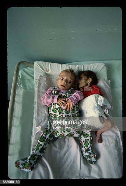 Two very ill infant boys with AIDS share a cot at the Victor Babes Hospital in Bucharest They are so thin their diapers appear huge around their...