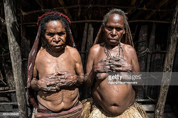 Two women from the Dani tribe show their amputated fingers at Obia Village on August 9 2014 in Wamena Papua Indonesia The Dani tribe live a...