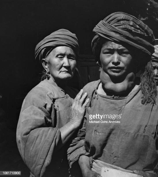 Two women in China circa 1950 The one on the right is possibly suffering from a goitre in her neck caused by iodine deficiency