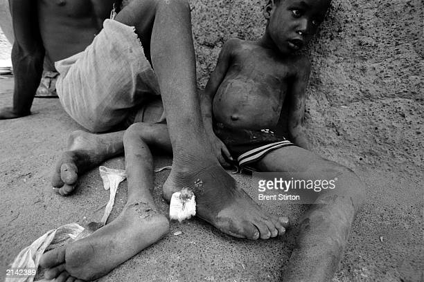 Two young boys lie in the shade with their wounds from a guinea worm infection February 2003 in rural Ghana Each has a worm inside his ankle creating...