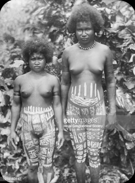 Two young girls displaying tattoos on their abdomen and legs New Guinea There is no official date for this image possibly taken c 1920 1920