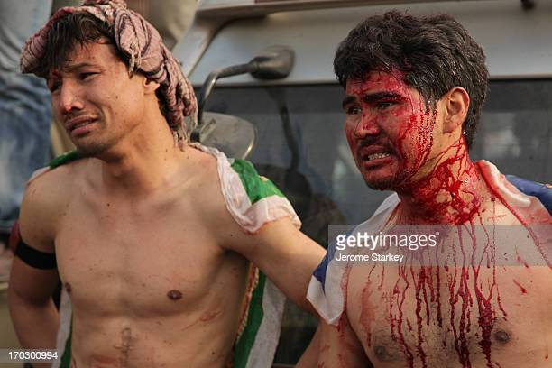 CONTENT] Two young men watch from the sidelines after they bloodied themselves during ritual selfflagellation outside the Abu Fazal shrine in Kabul...