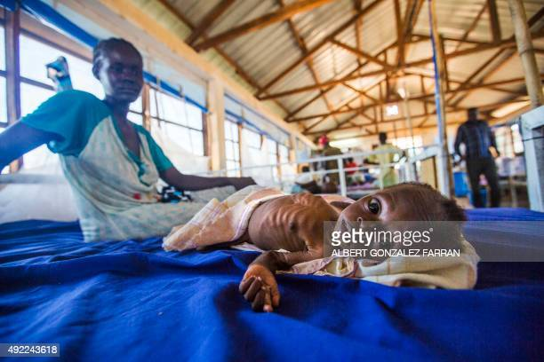 A twomonthold girl with a severe malnutrition lays on a bed next to her mother on October 9 2015 at the Aweil State Hospital in Aweil Northern Bahr...