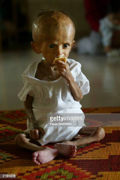 Twoyearold AIDS patient Viet Sopheanora weighing 44 kilograms eats a snack at the Little Sprouts group home for children with AIDS July 242003 in...