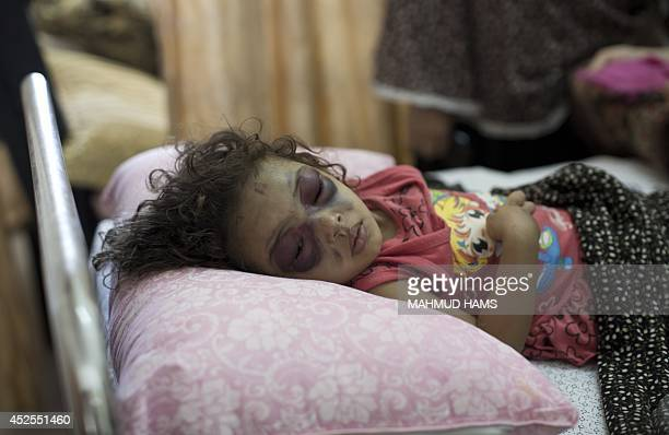 Twoyearold Palestinian girl Naama Abu alFoul sleeps after undergoing treatment at Gaza City's AlShifa hospital following Israeli bombing next to her...