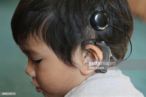 Tyler de Lara wears the external component which connects to the cochlear implant and allows Tyler to hear at the John Tracy Clinic in Los Angeles on...