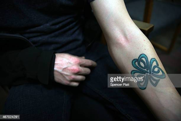 Tyler who recently got out of a rehab program for heroin addiction shows the faded track marks on his arm on February 5 2014 in Burlington Vermont...