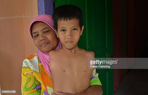 Tyo Satrio a little boy born without arms and legs poses with his mother at their home in Panawangan Ciamis on February 13 2016 in West Java...