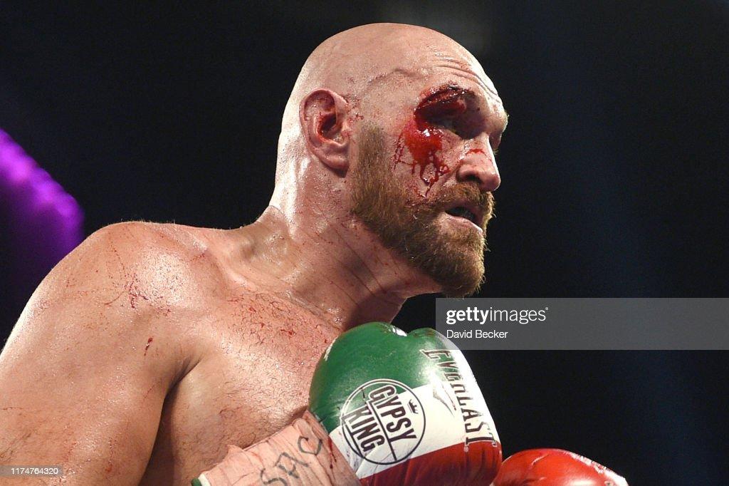 Tyson Fury v Otto Wallin : News Photo