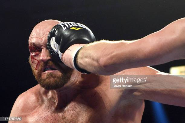 Tyson Fury is punched during his heavyweight bout against Otto Wallin at TMobile Arena on September 14 2019 in Las Vegas Nevada Tyson won by an...