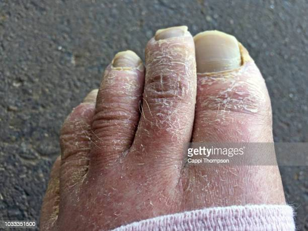 ugly toes with dry skin - images of ugly feet stock photos and pictures