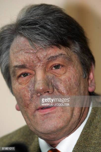 Ukraine's opposition leader Viktor Yushchenko gives a press conference before leaving the Rudolfinerhaus a private clinic in Vienna 12 December 2004...