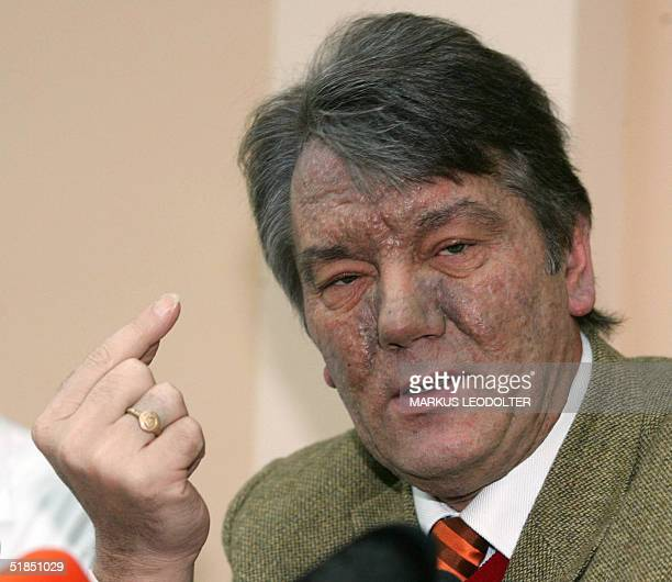 Ukraine's opposition leader Viktor Yushchenko speaks at a press conference before leaving the Rudolfinerhaus a private hospital in Vienna 12 December...
