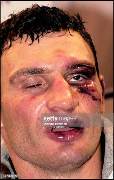 Ukrainian boxer Vitali Klitschko injured after his WBC Heavyweight title fight against reigning champion Lennox Lewis Los Angeles California 21st...