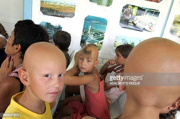 Ukrainian child Yulia Adienko late victim of the 1986 Chernobyl nuclear plant accident awaits 26 April 2006 with other children also under medical...