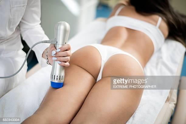 macchina di ecografia trattamento - cellulite foto e immagini stock