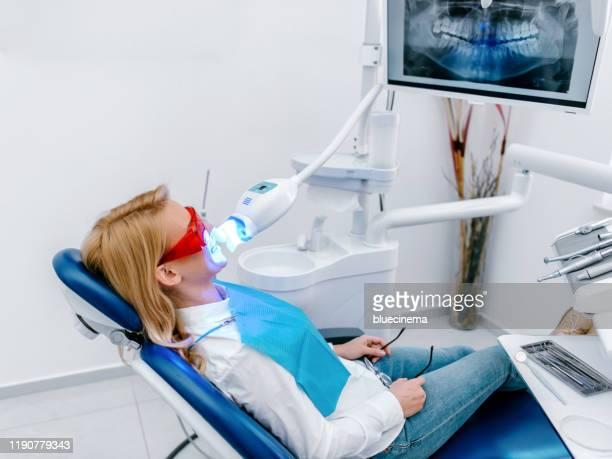 歯科医院での紫外線の手順 - 漂白した ストックフォトと画像
