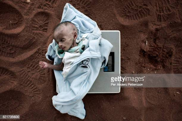 Umi Adan Olow 3 months old is weighed by Daniel Wanyoike a community therapeutic nurse for Save the in Mathahalibah Kenya The child weighed 17...