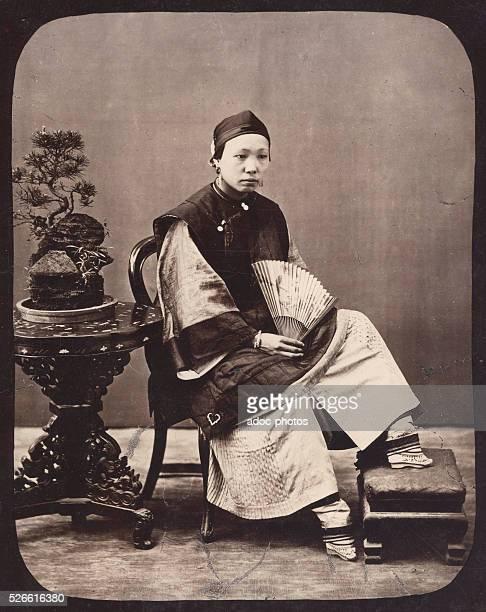 Unbandaged bound feet of a Chinese woman Ca 1870