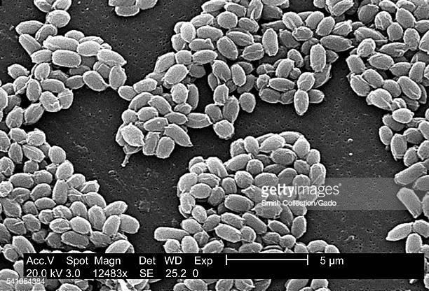 Under a high magnification of 12483X this scanning electron micrograph depicted spores from the Sterne strain of Bacillus anthracis bacteria 2002 For...