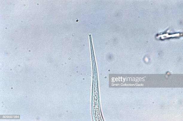 Under a magnification of 600X this photomicrograph reveals ultrastructural details displayed on the tailend of a parasitic nematode Strongyloides...