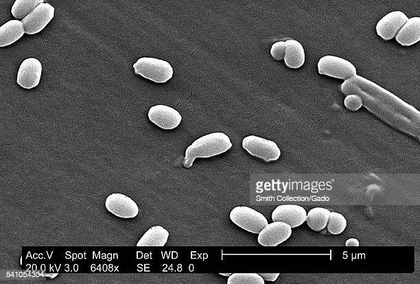 Under a magnification of 6408X this scanning electron micrograph depicted spores from the Aimes strain of Bacillus anthracis bacteria 2002 A key...