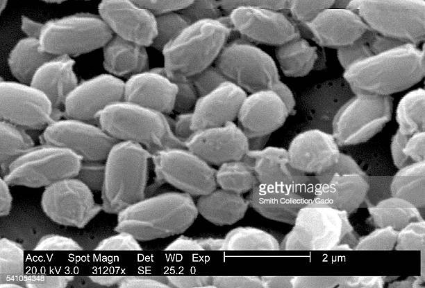 Under a very high magnification of 31207X this scanning electron micrograph depicted spores from the Sterne strain of Bacillus anthracis bacteria...