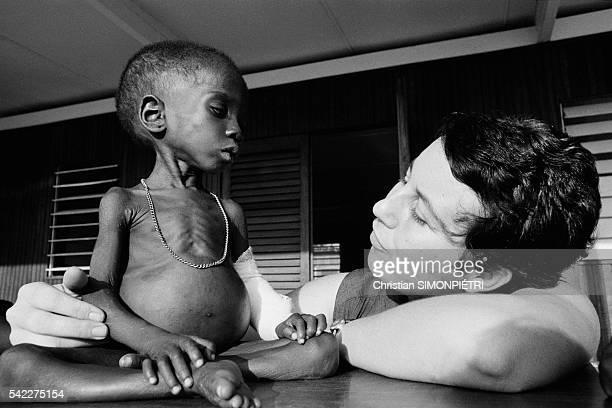 Undernourished Biafran children in a refugee camp in Gabon