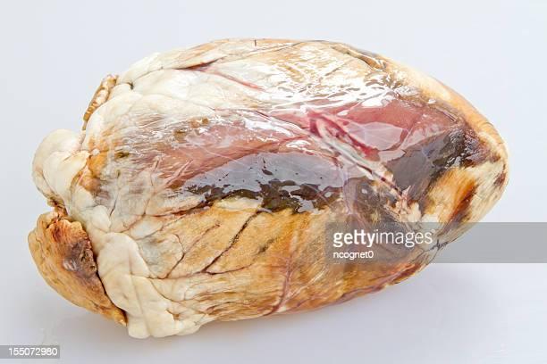 no saludable corazón - organos internos del cuerpo humano fotografías e imágenes de stock