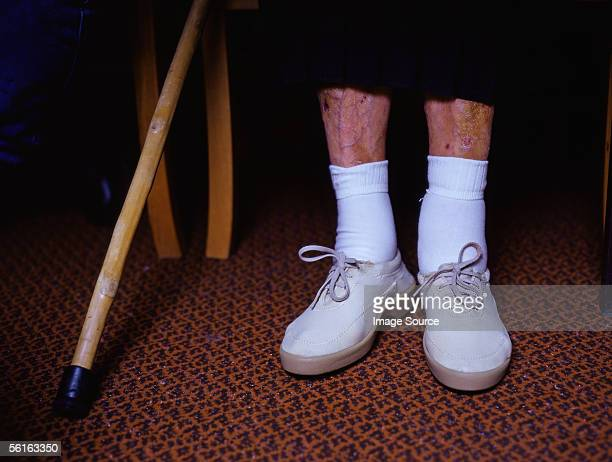 unhealthy legs - swollen stock photos and pictures